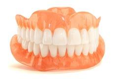 Het volledige close-up van gebitgebitten Orthopedische tandheelkunde met ons stock fotografie