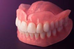 Het volledige close-up van gebitgebitten Orthopedische tandheelkunde met ons royalty-vrije stock afbeelding