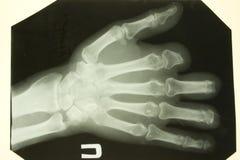Het voorbeeld van de röntgenstraal van de palmen Stock Foto