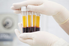Het voorbereiden van bloed voor Plasmolifting stock foto's