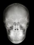 Het voorprofiel van de röntgenstraal scull Stock Foto's