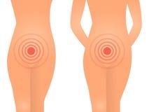 Het vrouwelijke concept van het gezondheids vaginale probleem Stock Afbeelding