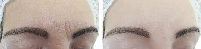 Het vrouwengezicht rimpelt before and after regeneratie het verouderen de kosmetiekbehandeling stock afbeelding