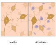 Het weefsel van de ziektehersenen van Alzheimer Stock Afbeeldingen