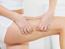 Het wijfje drukt cellulite huid op haar benen Stock Foto