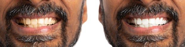 Before and after het witten van of het bleken van tanden royalty-vrije stock afbeeldingen