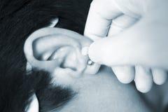 Het zaadbehandeling van het Auriculartherapyoor stock foto