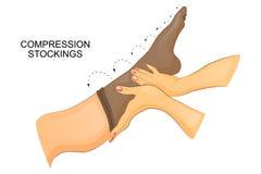 Het zetten op compressiekous op het been vector illustratie