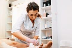 Het zoeten: epilation met liquatesuiker bij benen stock afbeeldingen