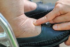 Het zwellen van enkels en voeten test door vinger op gebied te duwen royalty-vrije stock foto's