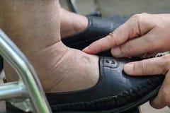 Het zwellen van enkels en voeten test door vinger op gezweld gebied te duwen royalty-vrije stock afbeelding