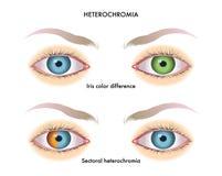 Heterochromia de l'iris illustration de vecteur