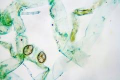 Heterocysts d'Anabaena images libres de droits