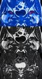 Heup avascular necrose, MRI Stock Foto's