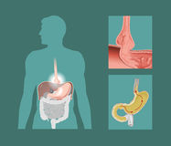 Hiatal hernia stock illustration