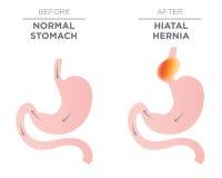 Hiatus Hernia Stomach Image Stock Image