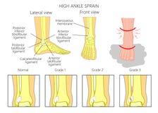 High ankle sprain. Illustration of Mechanism of formation of a High ankle sprain (Syndesmotic Sprain) and Grades of high ankle sprain with external and skeletal royalty free illustration