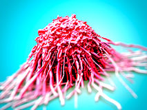 Cancer cell/ tumor Royalty Free Stock Photography