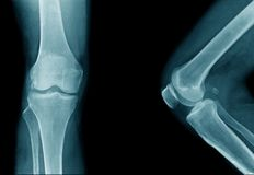 High quality x-ray knee joint of old man. OA knee of old man on black background in blue tone royalty free stock images