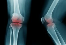 High quality x-ray knee joint of old man. OA knee of old man on black background in blue tone royalty free stock photography