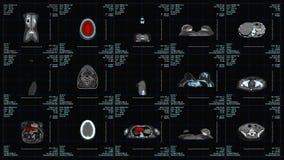 Magnetic Resonance Imaging Scan Monitor