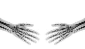 highen för händer 3d framför upplösningsshake Normala människahänder för röntgenstråle Arkivbild