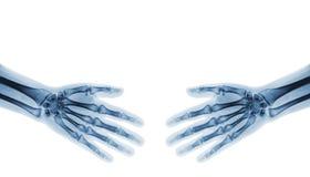 highen för händer 3d framför upplösningsshake Normala människahänder för röntgenstråle Royaltyfri Fotografi