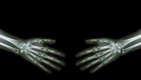 highen för händer 3d framför upplösningsshake Normala mänskliga händer för röntgenstråle (tomt område på övresidan) arkivfoto