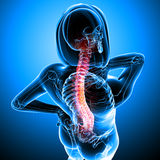 Highlighted back pain in female Royalty Free Stock Images
