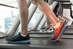 Highlighted bones of man on treadmill royalty free stock photo