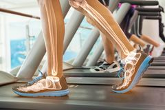 Highlighted bones of man on treadmill stock images