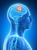 Highlighted brain tumor Royalty Free Stock Photo