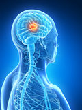 Highlighted brain tumor Stock Photo
