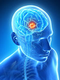 Highlighted brain tumor Royalty Free Stock Images