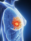 Highlighted breast cancer stock illustration