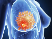 Highlighted breast cancer Stock Photos