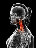 Highlighted cervical spine. 3d rendered illustration of a painful cervical spine Royalty Free Stock Photography