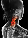 Highlighted cervical spine Stock Photography