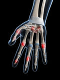 Highlighted finger joints. 3d rendered illustration of painful finger joints Royalty Free Stock Photo