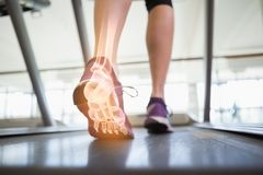 Highlighted foot bones of jogging woman Stock Photography