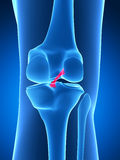 Highlighted knee joint Royalty Free Stock Photo
