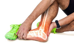 Highlighted leg bones of injured man against white background royalty free stock images