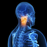 Highlighted painful neck. 3d rendered illustration of a painful neck Stock Photo