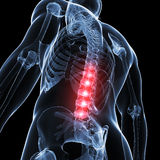 Highlighted spinal cord Stock Photography