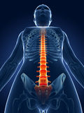 Highlighted spine. 3d rendered medical illustration - painful spine Stock Image
