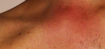 hinchazón dolorosa y muy que pica rojiza debido a la picadura del avispón de la avispa o de la abeja de la miel Fotos de archivo libres de regalías