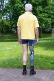Hintere Ansicht über Mann mit dem prothetischen Bein Lizenzfreies Stockfoto