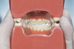 Hintere Ansicht des zahnmedizinischen Modells lizenzfreies stockbild