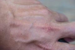 hintere Handnahaufnahme Lizenzfreie Stockbilder