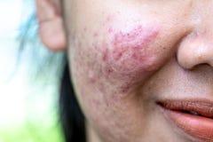 Hintergründe der Verletzungshaut verursacht durch Akne auf dem Gesicht stockfoto